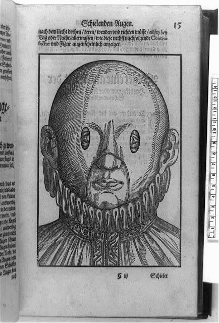 [Person with crossed eyes wearing corrective mask, head-and-shoulders view]