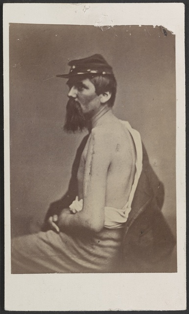 [Soldier named Ewing in kepi displaying a wound to his arm] / Henry Ulke, 178 Pennsylvania Avenue, Washington, D.C.