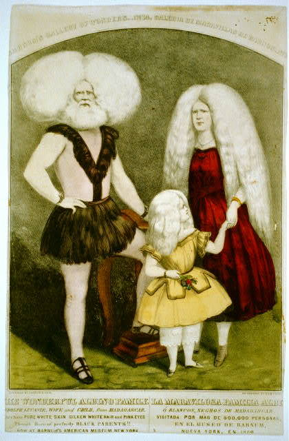 The wonderful albino family / la maravilosa familia albi [trimmed]