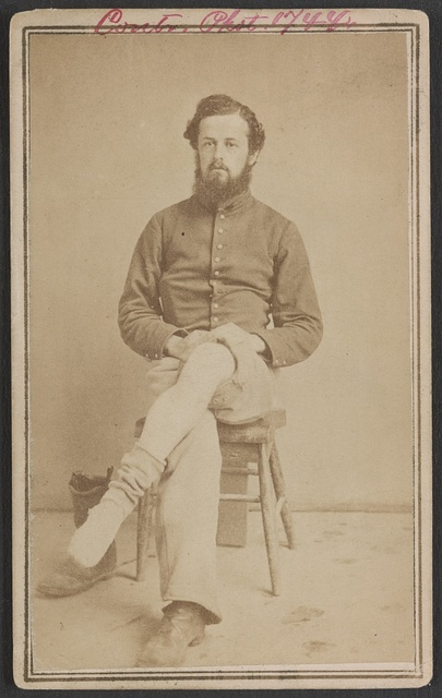 [Unidentified soldier in Union private's uniform displaying his leg wound]