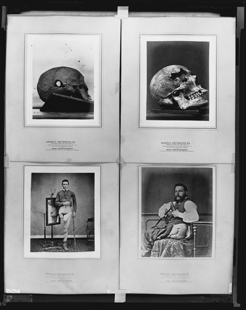 Surgical photograph ... prepared under the supervision of ...  War Department, Surgeon General's Office, Army Medical Museum