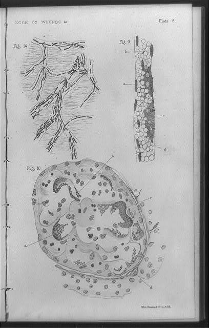 [Bacteria found in wounds as drawn from a photomicrograph] / West, Newman & Co., sculpt. lith.