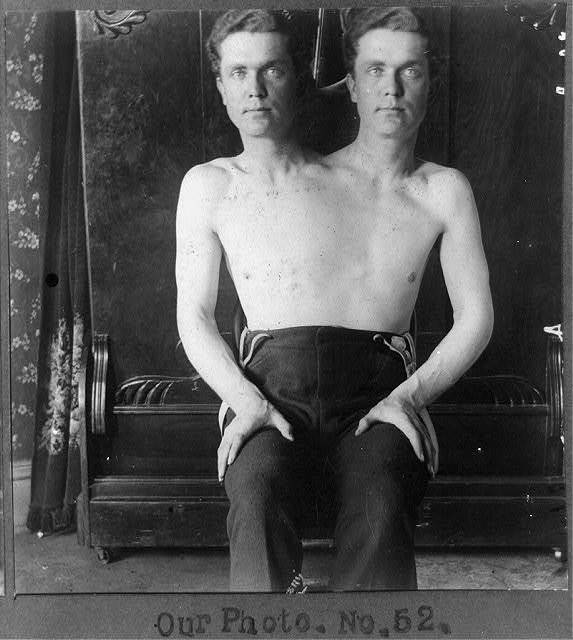 [Trick photograph of man with two heads]