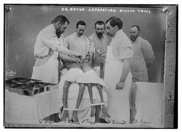 Dr. Doyen separating Hindoo twins