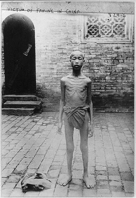 China. Beggars. Victim of famine in China