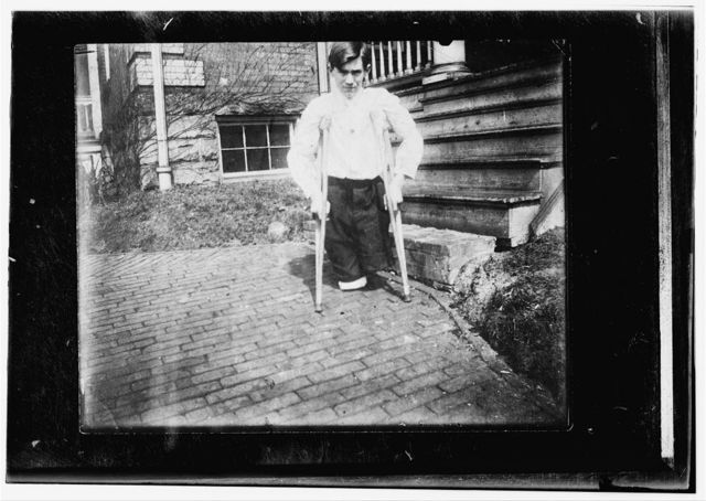 Monongah, W. Va. Nola McKinney, Secretary, 1910, West Virginia Child Labor Committee. Frank P......., whose legs were cut off by a motor car in a coal mine in West Virginia when he was 14 years 10 months of age.  Location: Monongah, West Virginia.