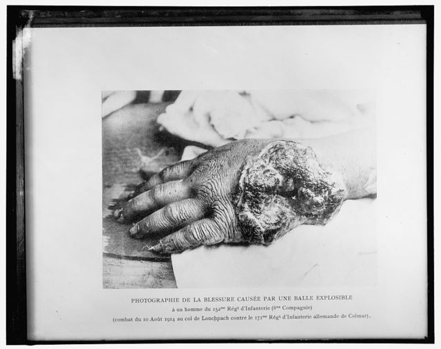 Photographie de la blessure causee par une balle explosible a un homme du 152me Regt d'Infanterie (8me Compagnie) DIACRITICS