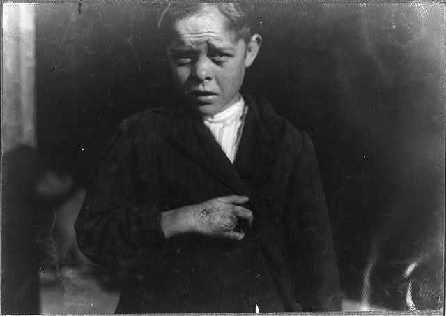 [Young cotton mill worker. A piece of the machine fell on his foot mashing his toe. This caused him to fall on to a spinning machine and his hand went into the unprotected gearing, crushing and tearing out two fingers.  Location: [Bessemer City, North Carolina].