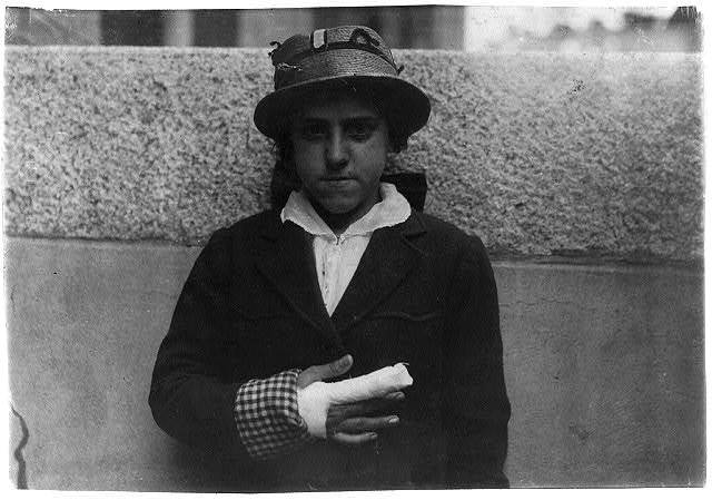 Union Hospital case - Estelle Poiriere, 137 Robeson St., 15 years old. Doffer at Granite No. 1 mill. Laceration of index and middle finger of right hand. Caught in card machine. Injured Dec. 21, 1915 and finger grew stiff and had to have cord cut. Still an outpatient in June and not working yet.  Location: Fall River, Massachusetts / Lewis W. Hine.