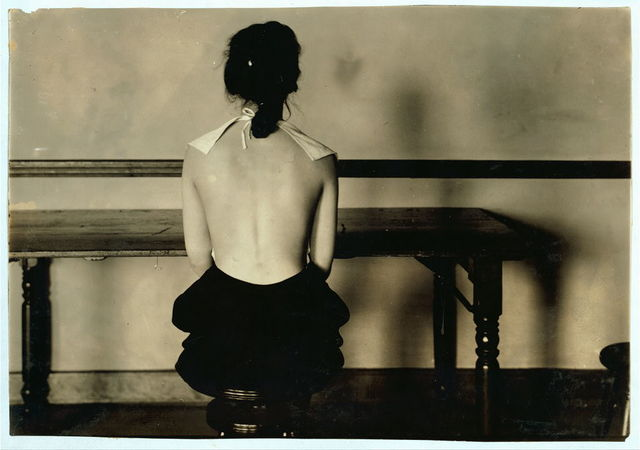 Correct posture for 4663. Need for advice of examining physician. See 4664.  Location: Boston, Massachusetts / Lewis W. Hine.