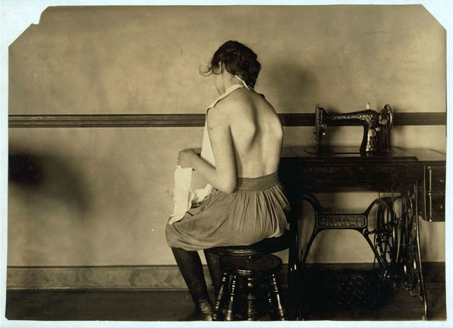 Elizabeth Rudensky. Right dorsal curve. Scoliosis - real spinal case - bad. Showing wrong kind of occupation for this physical defect. No support for the feet. Defect would be greatly increased by this kind of occupation. See 4668 & 4669.  Location: Boston, Massachusetts / Lewis W. Hine.