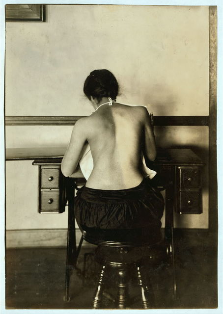 Mildred Benjamin, 17 years old. Right dorsal curvature. Scoliosis. Right shoulder higher than left. Shows incorrect position required to perform this kind of work. Stopping use of right arm. See 4667, 4671 & 4672.  Location: Boston, Massachusetts / Lewis W. Hine.