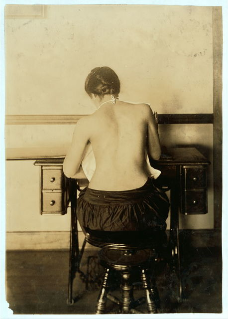 [Mildred Benjamin, 17 years old. Right dorsal curvature. Scoliosis. Right shoulder higher than left. Shows incorrect position required to perform this kind of work. Stopping use of right arm. See 4666, 4667 & 4672.]  Location: [Boston, Massachusetts]. / Lewis W. Hine.