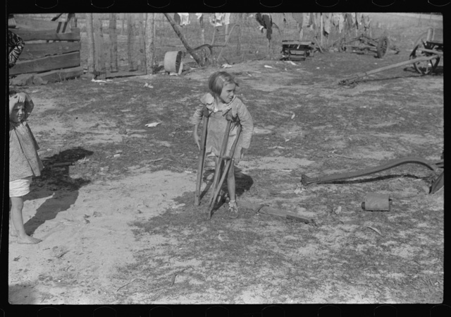 Ten year old child of George Cowley Family (rural rehabilitation client). Her bones break exceptionally easy (diet deficiency said to be one of causes) and one leg has been broken five times and doesn't mend properly. Pike County, Alabama