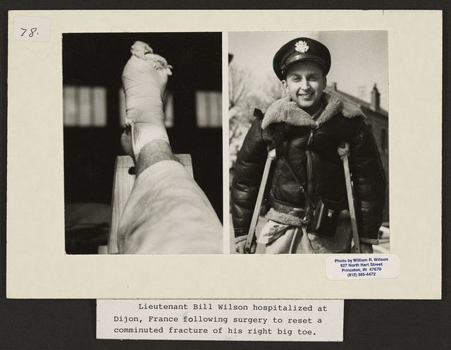 Lieutenant Bill Wilson hospitalized at Dijon, France following surgery to reset a comminuted fracture of his right big toe